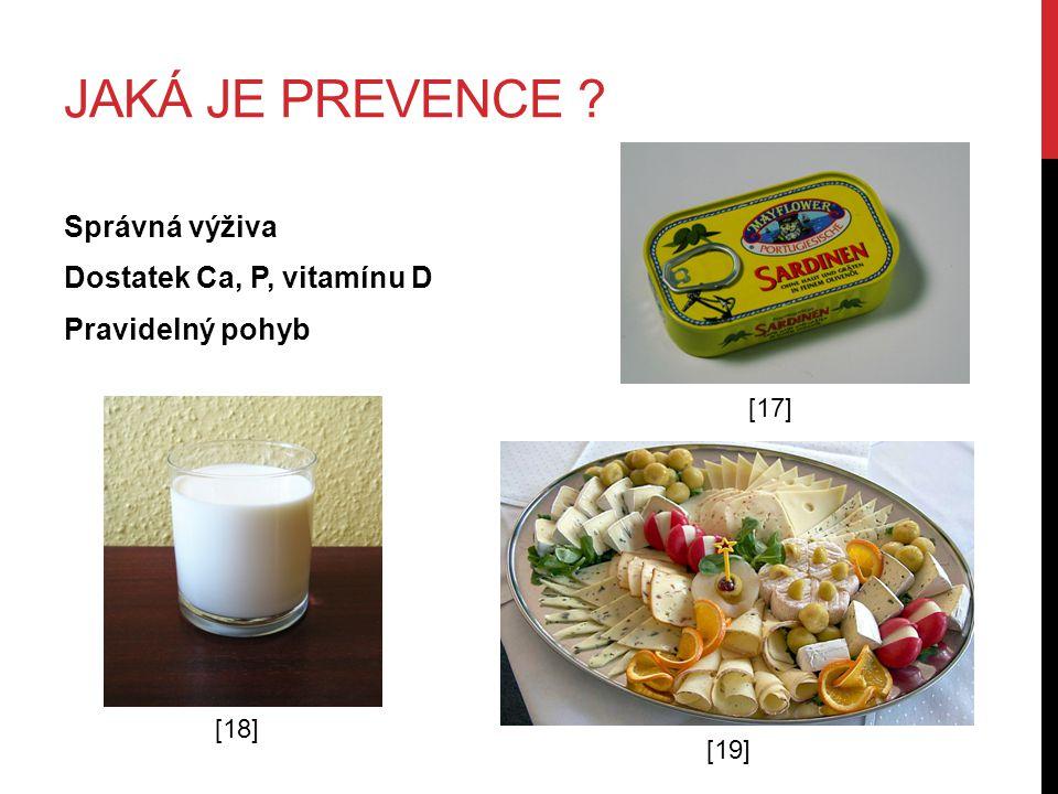Jaká je prevence Správná výživa Dostatek Ca, P, vitamínu D Pravidelný pohyb [17] [18] [19]